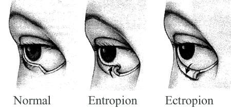 Εκτρόπιο - Εντρόπιο Βλεφάρων - Αντιμετώπιση