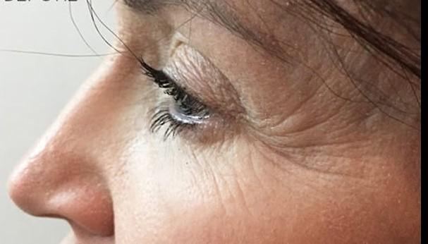 Ρυτίδες ματιών & μεσόφρυου - Αντιμετώπιση